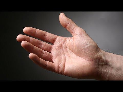 cum se tratează poliartroza articulațiilor