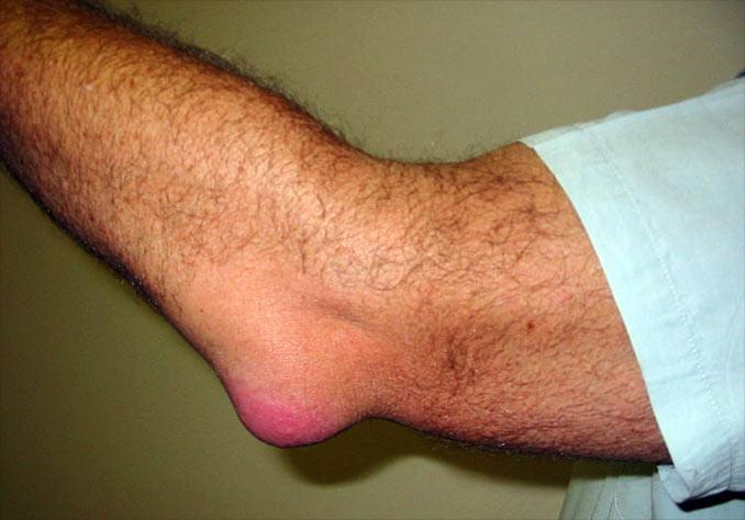 fistula tratamentului articulației cotului artrita simptomelor articulației cotului