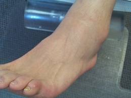 Semne de alarma: umflarea picioarelor (edem)   championsforlife.ro