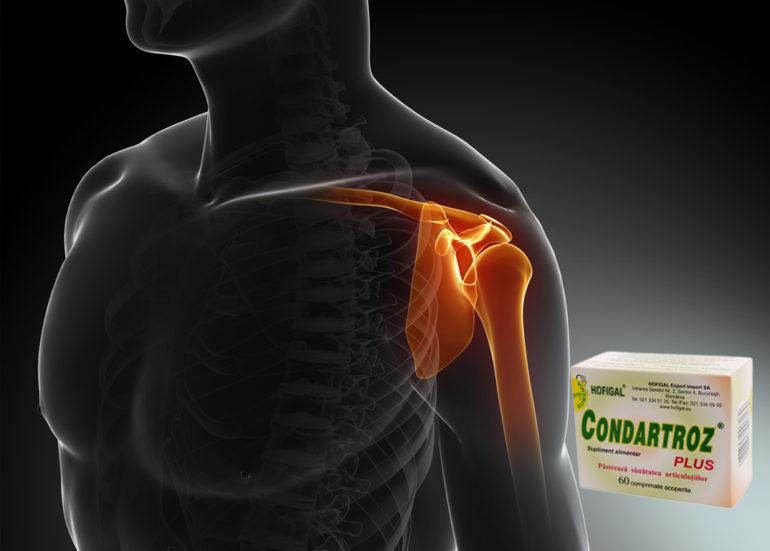 bursita cotului tratament conservator tratamentul artrozei cu suc de aloe
