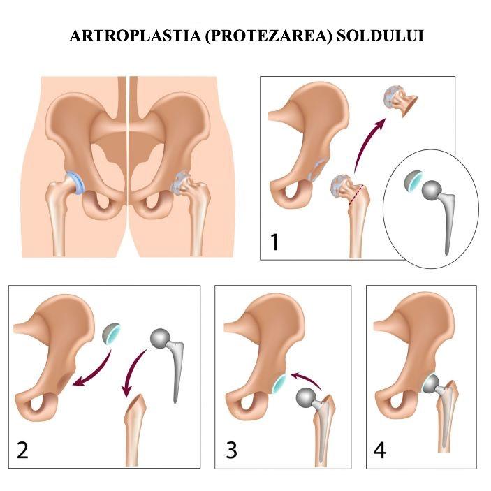 istoric de coxartroză a articulației șoldului gradul 3