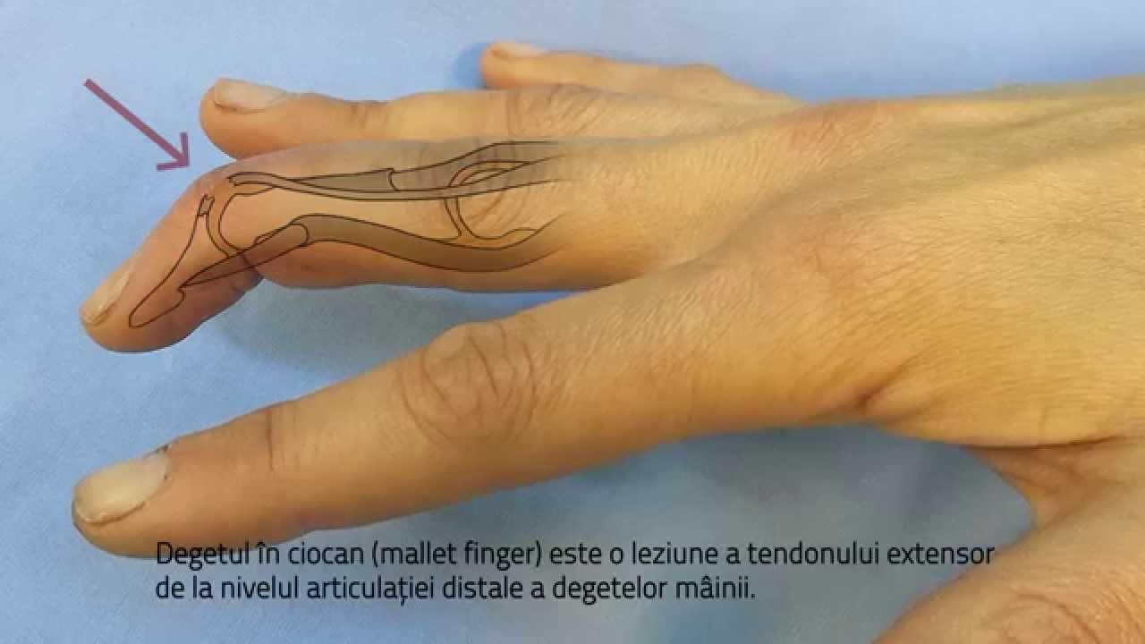 umflarea și durerea articulațiilor pe degetul arătător