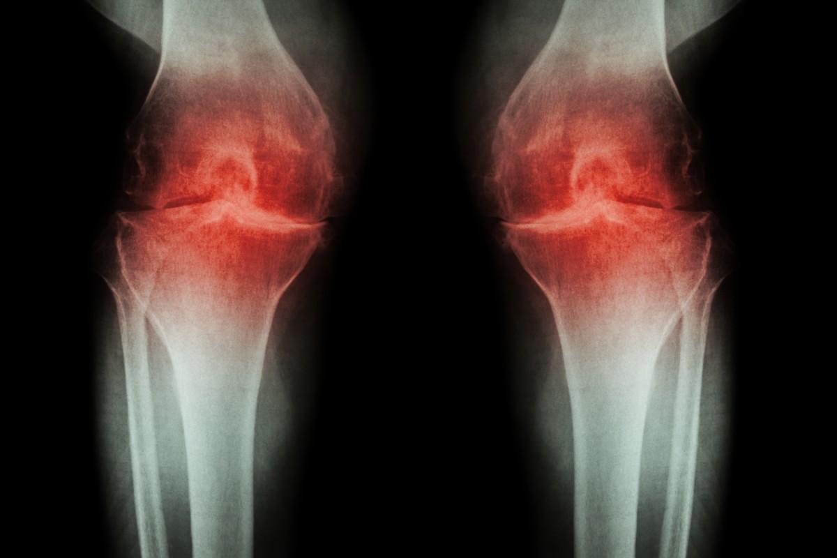 procedura de tratare a artrozei articulațiile pelvine au început să doară